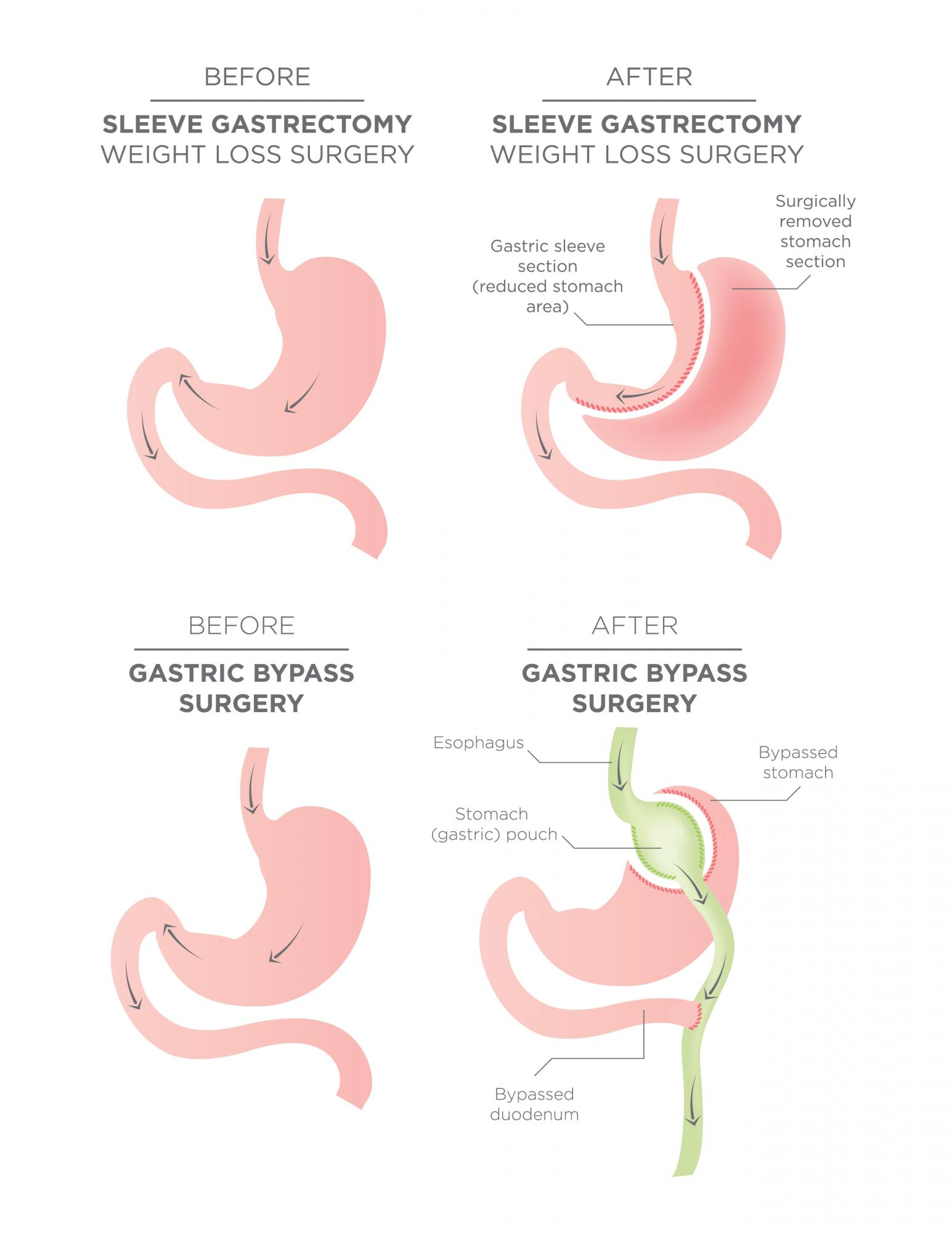 WEIGHT_LOSS_Anatomy.jpg